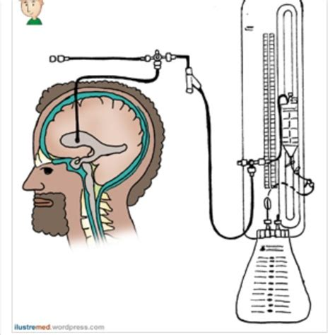 codman evd drain external ventricular drains and intracranial pressure