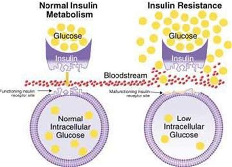 strategies  dealing  insulin resistance  diabetes  karen vaughan updated
