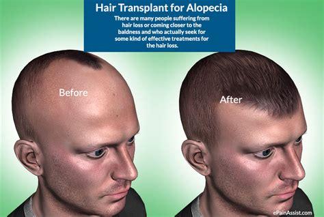 30000 hair graft cost hair transplant in pakistan hair transplant prp clinic
