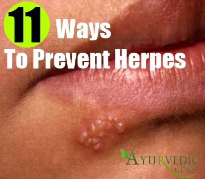can u catch herpes from a toilet seat news herpes alternative medicine for cancer