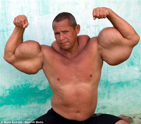 download image man injects synthol with muscles pc android iphone synthol injections into penis sex porn images
