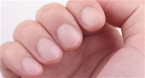 Finger Nail by How To Treat An Ingrown Fingernail
