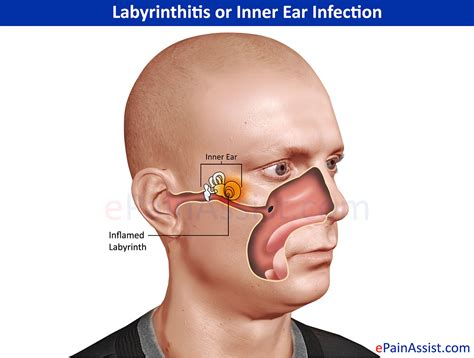 ear infection symptoms labyrinthitis or inner ear infection types symptoms treatment antihistamines