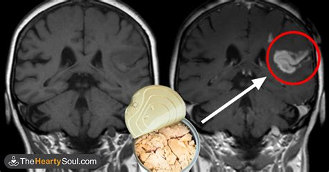 Detox Mercury From Your Brain by 10 Foods You Need To Eat Right Now To Remove Toxic Mercury