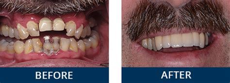 smile gallery londonderry dentist  windham nh
