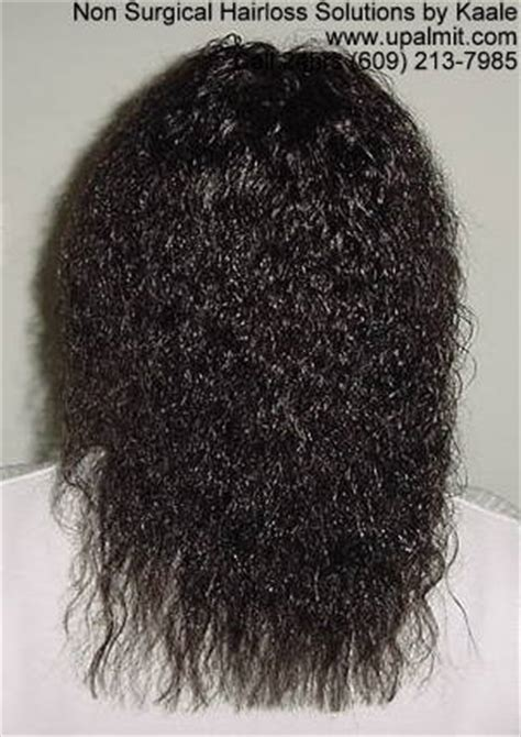 hair growth after braids non surgical hair loss solutions call 24hrs 609 647 8086