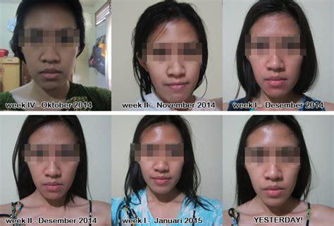 Kojie San Lotion 200gr Kojic Lotion Dijamin Asli cara mencerahkan kulit dengan kojie san noniq a review