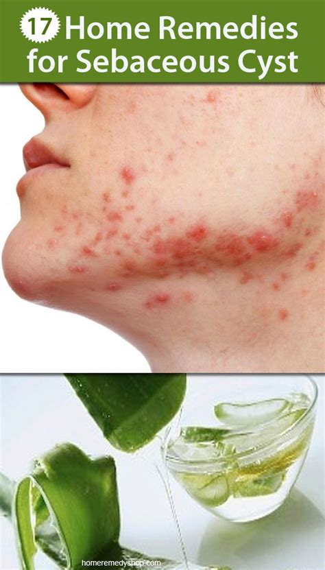 17 best images about acne skin care on