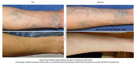 laser tattoo removal side effects austinpicosure a removal s notes laser