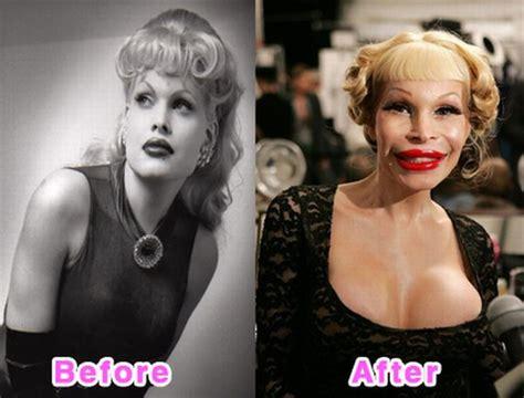 worst celeb plastic surgery freshpic reviews 16 worst celebrity plastic surgery disasters