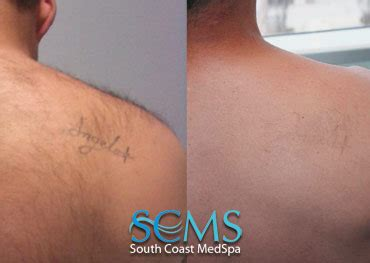 tattoo removal long beach laser removal in los angeles newport