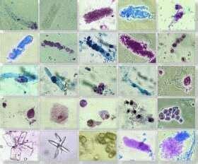 sedimento urinario leucociti astrovet l importanza dell esame delle urine