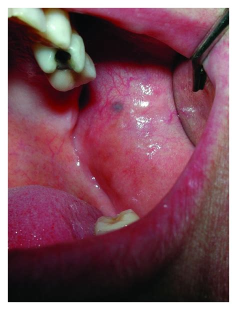 amalgam tattoo amalgam mimicking mucosal melanoma a diagnostic