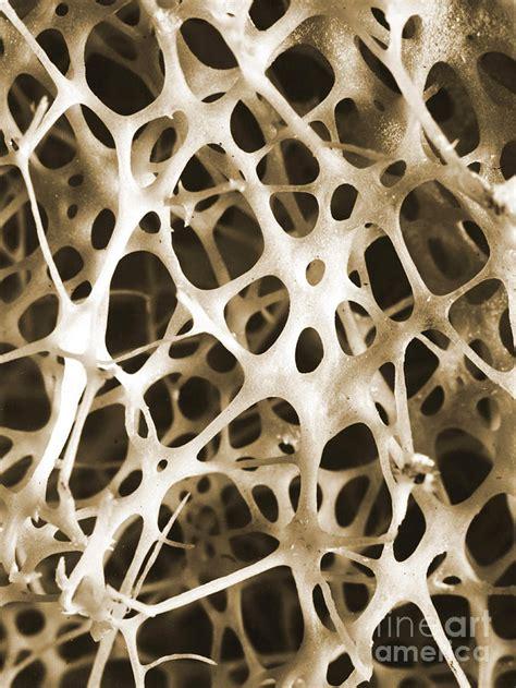nature patterns human sem of human shin bone art by nature pinterest