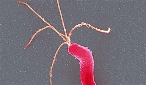 helicobacter alimentazione helicobacter pylori non ulcera tutte le malattie