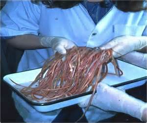 worms in humans symptoms of tapeworms in humans tapeworm human top ten most disgusting