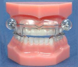 most comfortable mouthguard for sleeping dental treatments for snoring and sleep apnoea