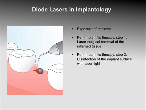 diode laser bacterial reduction diode laser bacterial reduction 28 images dental hygienist in smile non surgical treatment