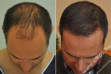 best hair implants hair transplant expert in budapest hungary dr sikos