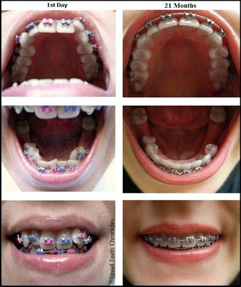 hacks for getting sugarfree gum off clothing 125 best images about braces on mouths getting braces and brushing