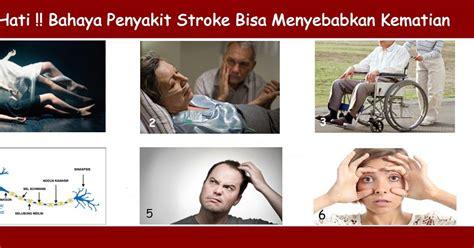 gejala penyebab penyakit stroke dan cara penyembuhan pengobatan untuk mengatasi penyakit stroke secara efektif