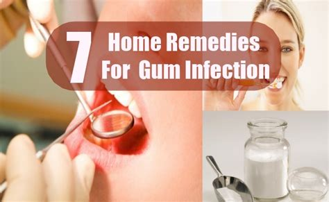 7 gum infection home remedies treatments and cure