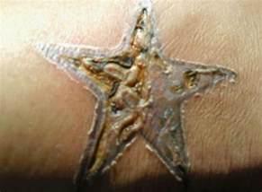 come per il trattamento di un infetto segni di tatuaggi i