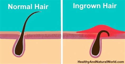 why do ingrown hairs hurt 17 best images about health natural remedies on