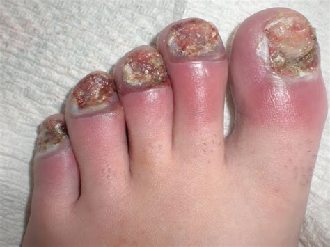 Toe Nail Care by Redefining The Of Skin Disorders Ingrown Nails