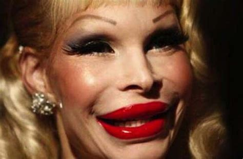 plastic surgery gone wrong plastic surgery gone wtf damn cool pictures