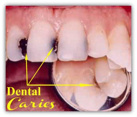 Proses Pemutihan Gigi pengertian karies gigi dan proses terjadinya karies gigi education articles