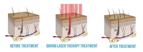 low level laser light therapy lllt anderson center for hair atlanta ga
