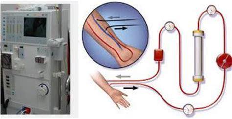Mesin Cuci Darah Hemodialisa cuci darah dialisis untuk gagal ginjal mediskus