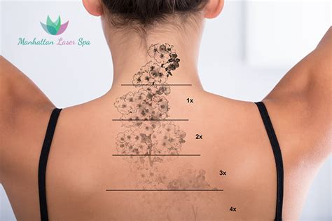laser tattoo removal 4 sessions for a medium area up to 4