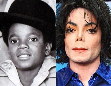 Masker Botox By Dewa Kosmetik la transformation physique de michael jackson au fil du temps