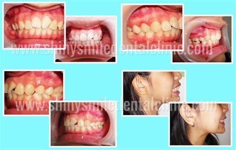 smile gallery veneer gigi kawat gigi pemutih gigi