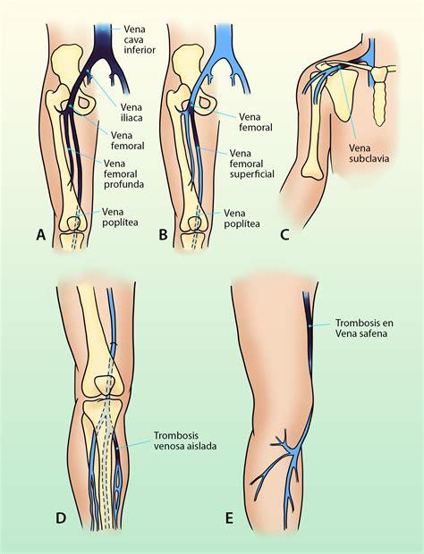 vena safena interna manual de cirug 237 a vascular cap 19 insuficiencia venosa