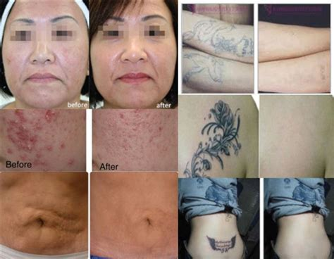 yag laser tattoo removal before and after portable q switched nd yag removal laser machine