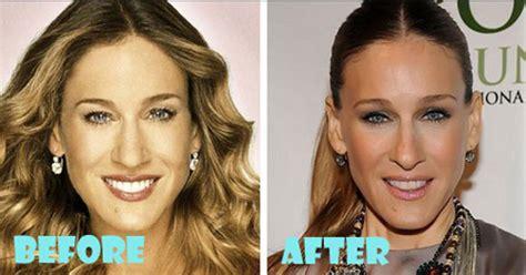 jessica parido face plastic surgery sarah jessica parker plastic surgery are true or wrong