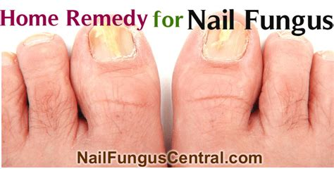 home remedy for nail fungus nail fungus central
