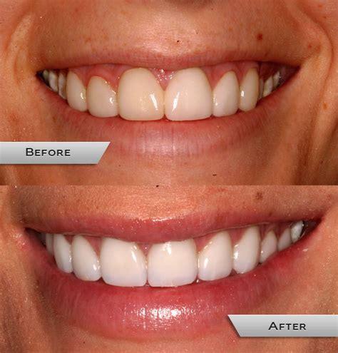 Whitening Tje teeth whitening whiten stained teeth