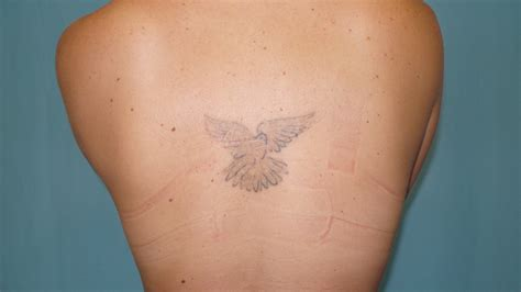 tattoo removal by plastic surgery before and after results dr simon laser