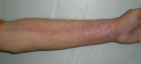 tattoo skin graft cost image gallery healed skin graft