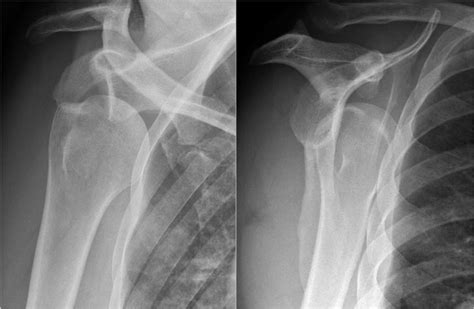The Radiology Assistant : Shoulder MR - Instability Humeral Fx