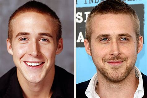 ryan gosling ryan gosling nose job before and after pics