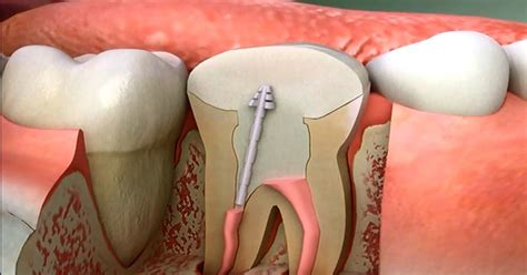 diy root canal toxic teeth how root canal procedures dramatically