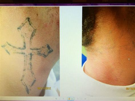 tattoo removal hertfordshire 100 laser dermatology removal gallery