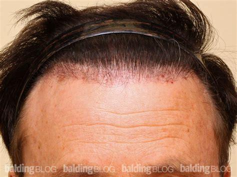hair plugs for balding blog repair archives wrassman m d baldingblog
