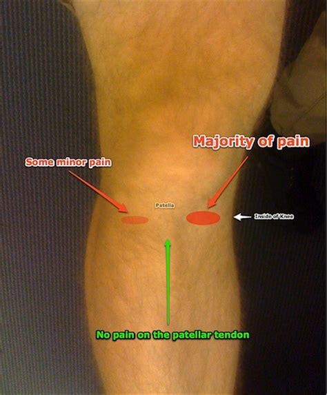 diagram of left knee diagram of my knee flickr photo