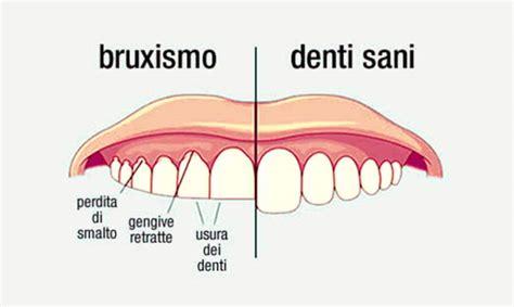 bruxismo mal di testa bruxismo digrignare i denti rimedi cause sintomi